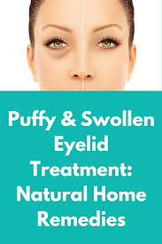 Puffy & Swollen Eyelid Treatment: Natural Home Remedies | Beauty ...