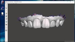 Stl File Designer Introduction To Using Free Dental 3d Modeling Software Viewing Stl Files