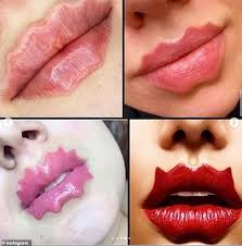 Lip Filler Chart Bizarre New Beauty Trend Sees Women Use Lip Fillers And