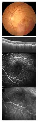 Submacular Hemorrhage Following Cataract Surgery In A Patient With ...