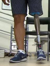 Resultado de imagem para imagem de protese de perna