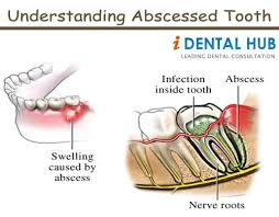 tooth nerve pain severe