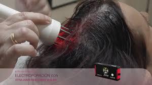 Alopecia Areata Electroporacion Hair Restorer - YouTube