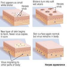 herpes harvard health