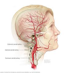 arteries of the face carotid artery disease symptoms and causes mayo clinic