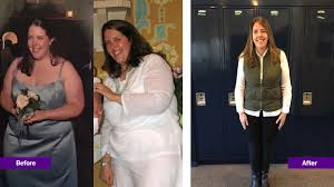 Weight Loss Surgery Options | NYU Langone Health