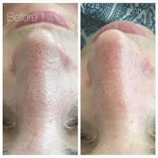 blocked pores beauty