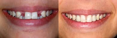 Image result for pictures of dental implants