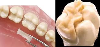 Dental Inlay Dental Inlay Magdalene Project Org