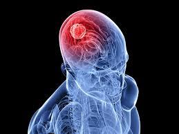 рак мозга