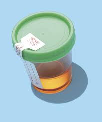 Light Pink Color Urine Pink Urine What Causes Pink Or Red Urine Urology Austin