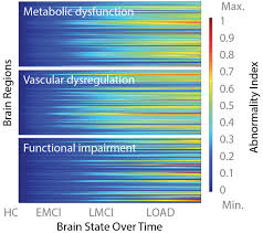 Stages Of Alzheimer S Disease Chart Big Data May Lead To Earlier Alzheimers Diagnosis