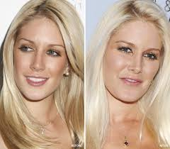Chin Implant Size Chart Chin Implant Before After Pics Celebs With Sharp Jawline