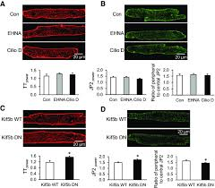 effects of microtubule motor proteins on junctophilin 2 jp2 distribution and transverse