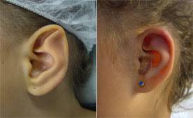 Stahls Prominent Ears Ear Pinning Surgery