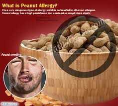 What is Peanut Allergy|Causes|Symptoms|Treatment|Complications ...