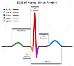 Sinus Chart Ecg Of Normal Sinus Rhythm Infographic Diagram Showing Normal
