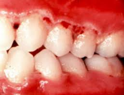 molar teeth pain home remedy