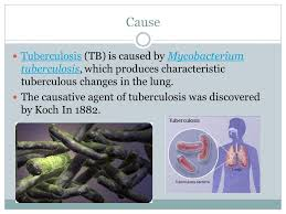 theme pulmonary tuberculosis essay kazakh national medical cause tuberculosis tb is caused by mycobacterium tuberculosis which produces characteristic tuberculous changes