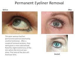 10 27 permanent eyeliner removal