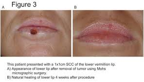 prevention of lip cancers