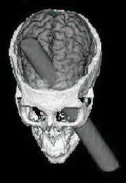 phineas gage before the accident. computer reconstruction of the skull phineas gage illustrating projection tamping rod through brain. reprinted with permission from before accident