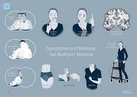 multiple sklerose mit vorherrschend schubförmigem verlauf