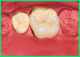 Dental Inlay Composite White Fillings Sydney Cbs Lave Cove A Better