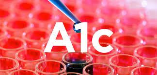 Image result for A1c test