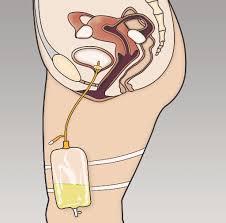 Bladder Catheterisation How Does A Catheter Work Bladder Bowel Community