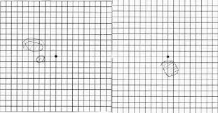 Eye Test Chart Grid Amsler Grid Eye Test Of Right On The Right And Left On