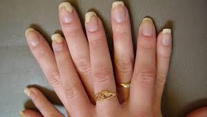 fingernail fungus treatment home remes