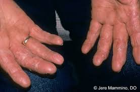 Hand Rashes - American Osteopathic College of Dermatology (AOCD)
