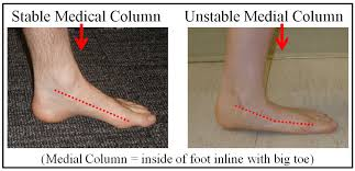 Flat Footed Characteristics Of A Flat Foot Footeducation
