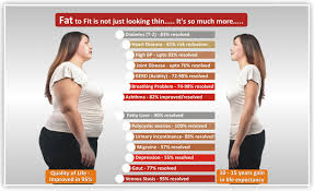 weight loss surgery – Looking Good All The Time