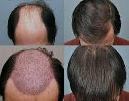 synthetic hair transplant in delhi image 2