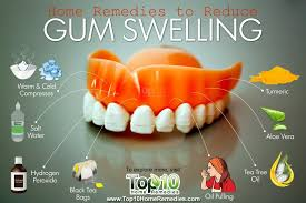 tea bag tooth pain remedy