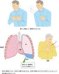 肺 が 痛い