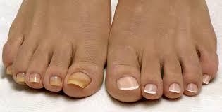 Díky Této Směsi Zmizí Plíseň Na Nohou I Rukou Výsledky Se Dostaví