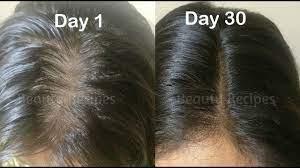 vitamin e oil onion juice for hair