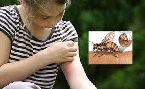 Bị côn trùng đốt cần làm gì?