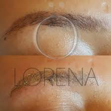 permanent makeup removal before after