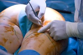 liposuction, sd news blog, hospitals that do liposuction in nigeria, liposuction specialists in abuja