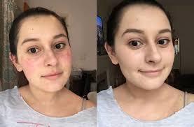 Allergies Treatment – Barbie Vitiligo Cosmetic & Laser Clinic