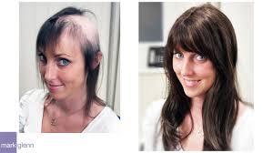female hair loss solution mark glenn