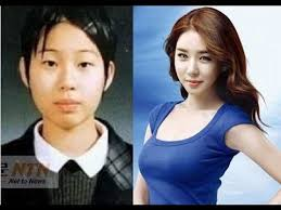 top 10 beautiful korean plastic surgery before and after