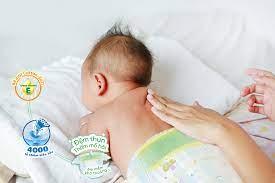 Hiểu đúng về đổ mồ hôi trộm ở trẻ sơ sinh