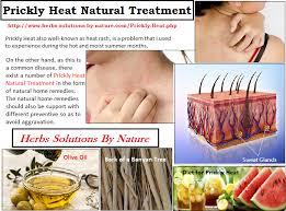 t for ly heat rashes natural treatment in this summer hair treatments natural treatments