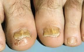 Tratament ciuperca unghiilor naturale