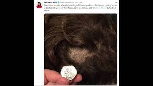 hair chunks taken from phillipsburg ks students in test the wichita eagle